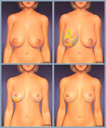 Breast Reduction - Diagram