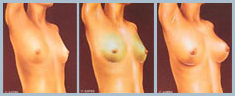 Breast Augmentation - Diagram