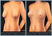 Breast Lift - Diagram