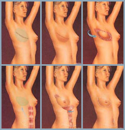 Breast Reconstruction - Diagram